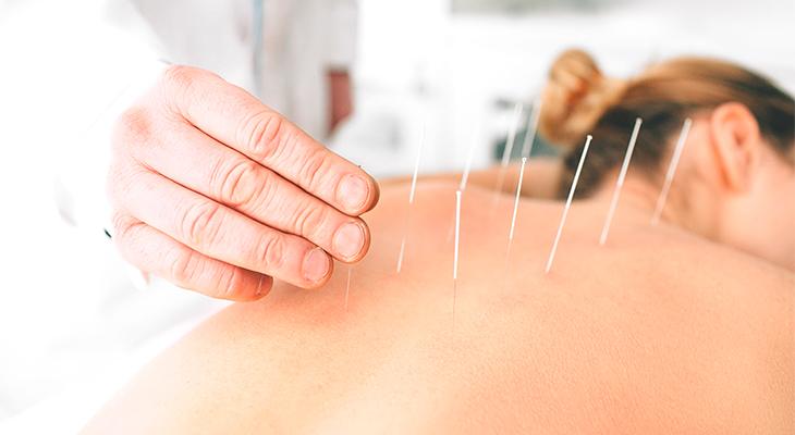 tratamiento acupuntura Gijón